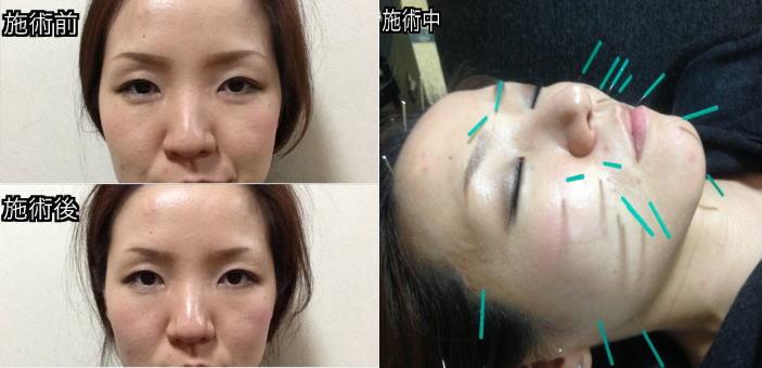 美容鍼施術