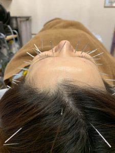 頭皮美鍼1