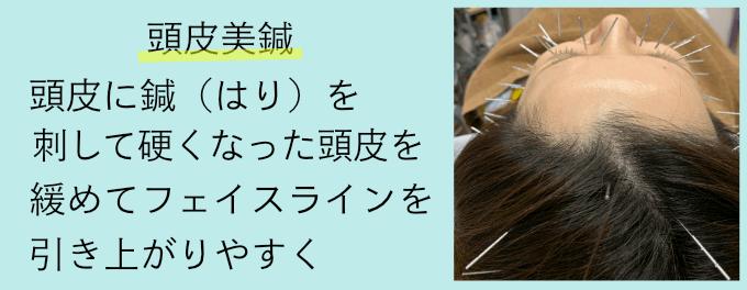 頭皮の美容鍼『頭皮美鍼』