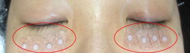 シール型の鍼